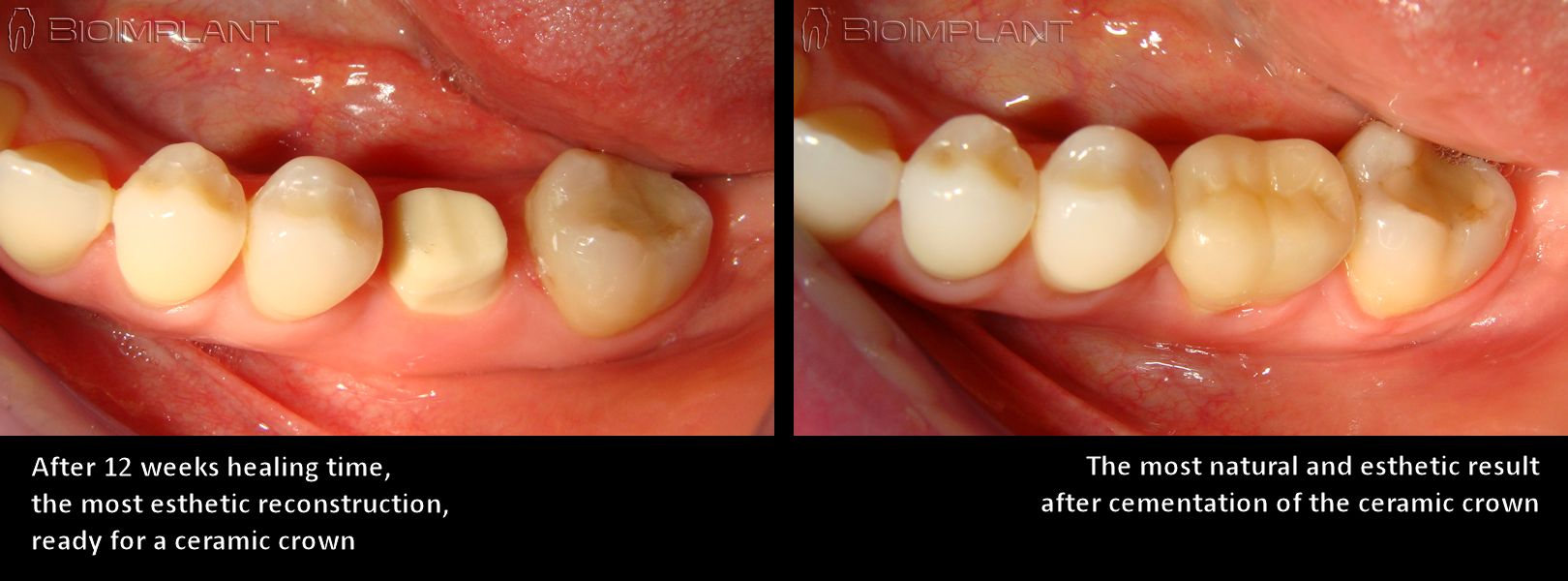 2_implant_crown_en