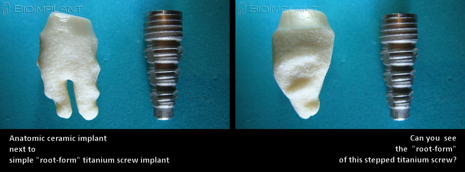 3_anatomic-screw_implant_en