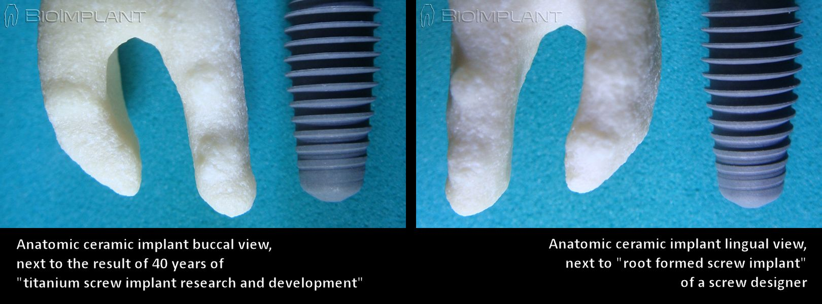 3_anatomic_screw_implant_en