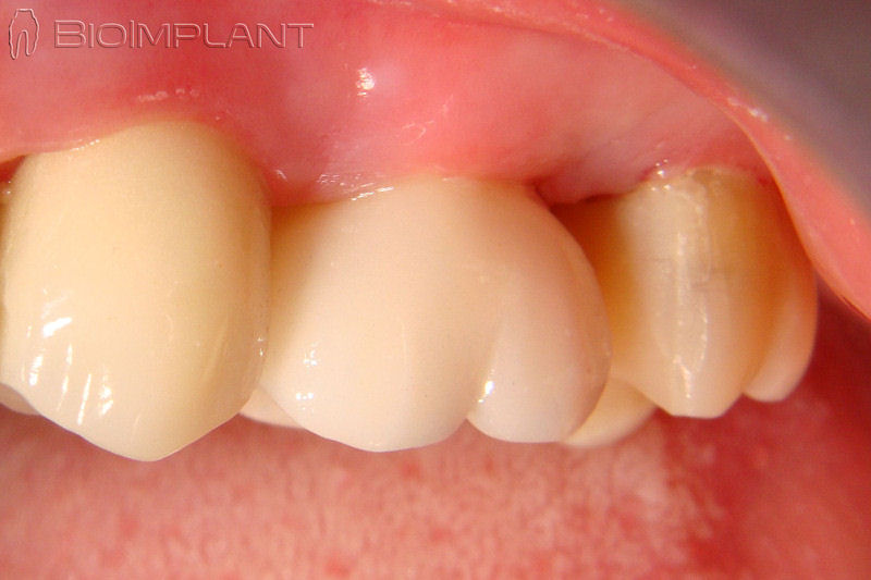 immediate upper molar implant