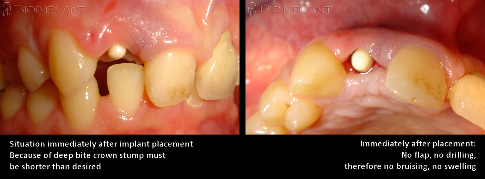 anatomic_dental_implant_ideal_in_difficult_situations
