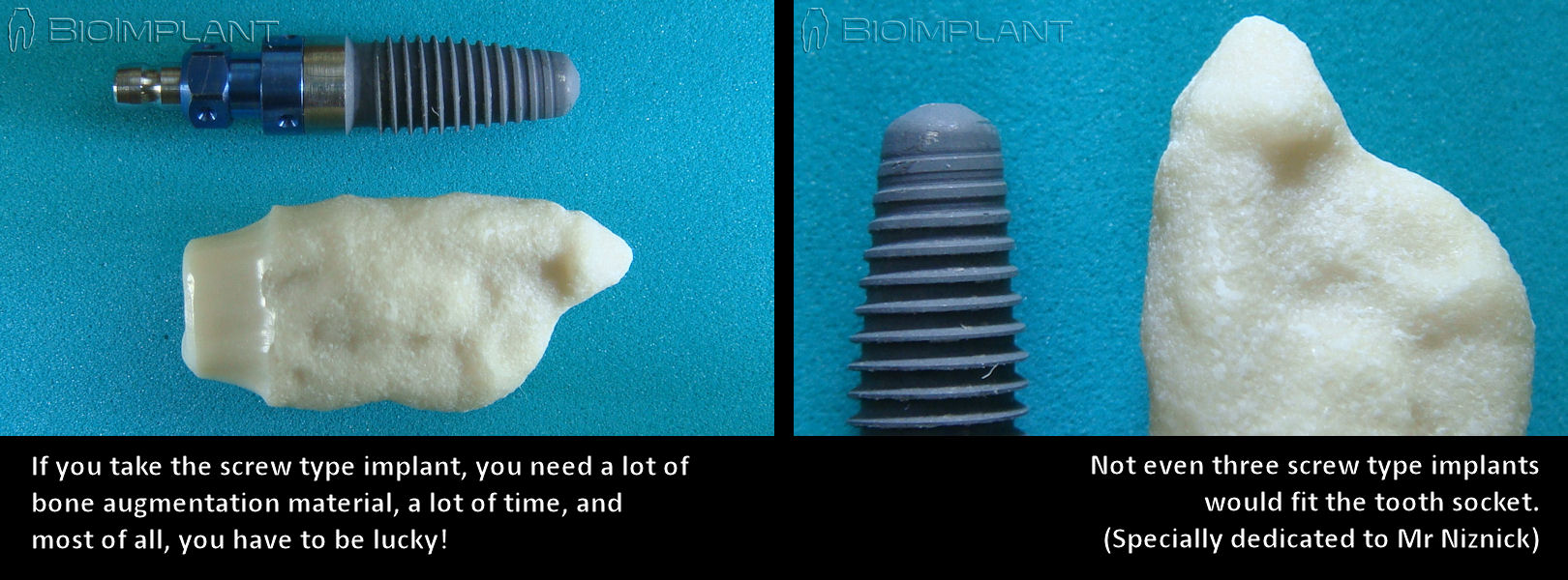 anatomic_dental_implant_unique_form