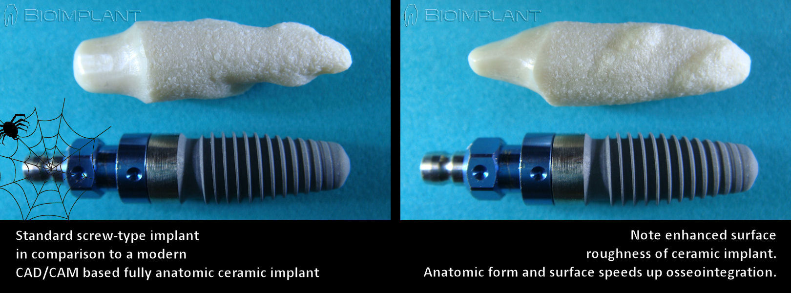 anatomic_implant_compared_to_screw_implant
