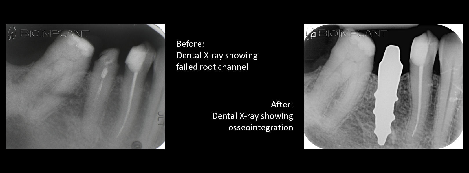 anatomic_implant_osseointegration_xray