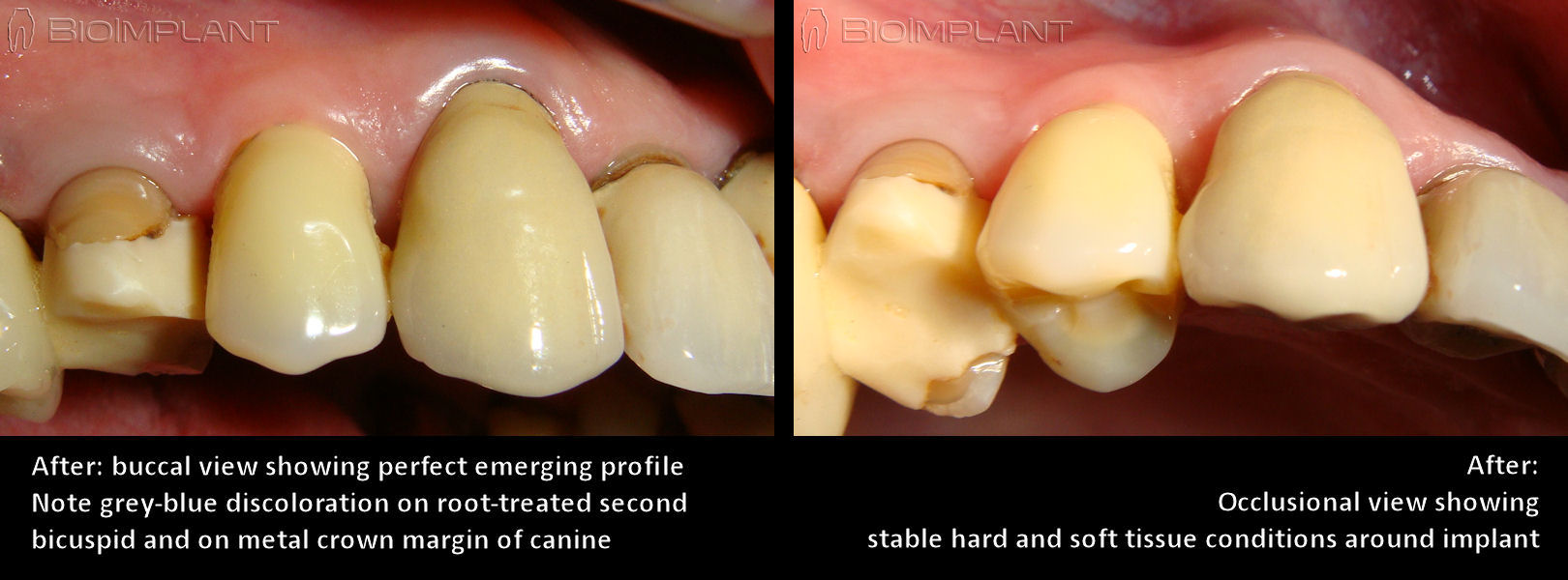 anatomic_zirconia_implant_emerging_profile_buccal_occlusional_view