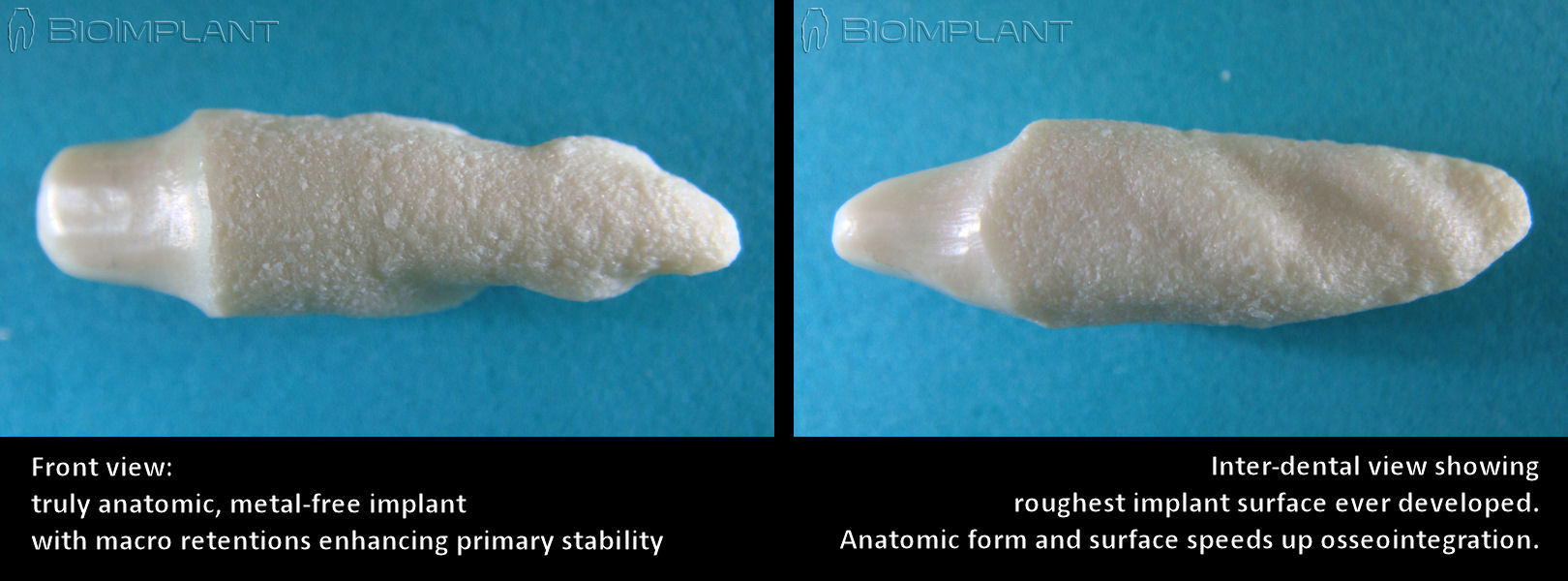 anatomic_zirconia_implant_views