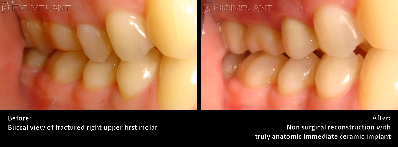 buccal_view_first_molar_ceramic_implant