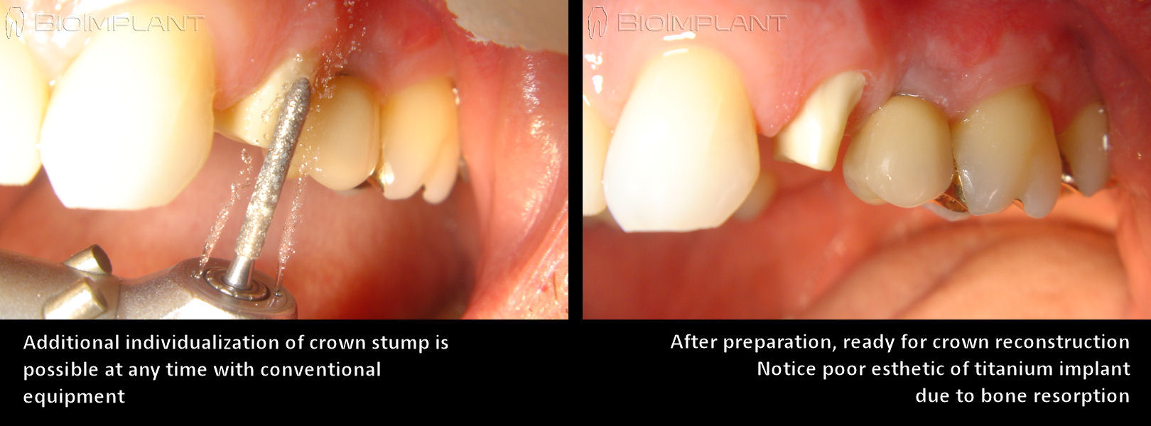 ceramic_dental_implant_crown_stump_adaptation