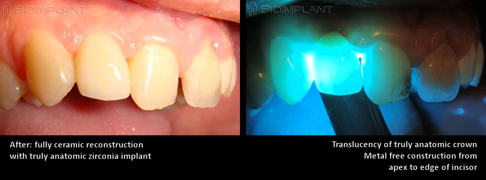 ceramic_implant_natural_translucency