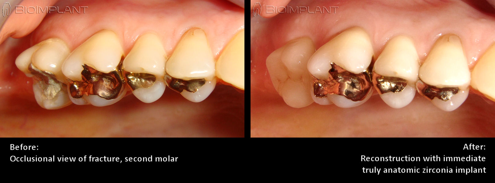 fractured_molar_zirconia_implant_occlusional_view