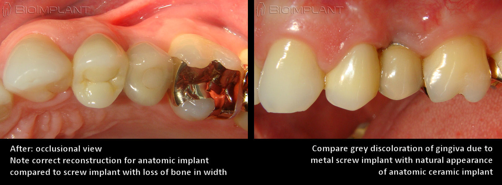 gingiva_anatomic_ceramic_implant_compared_to_metal_implant