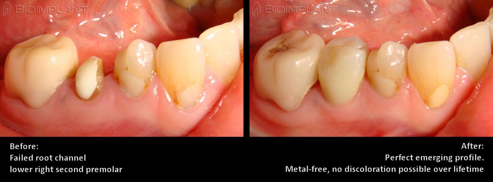 molar_reconstruction_with_zirconia_implant