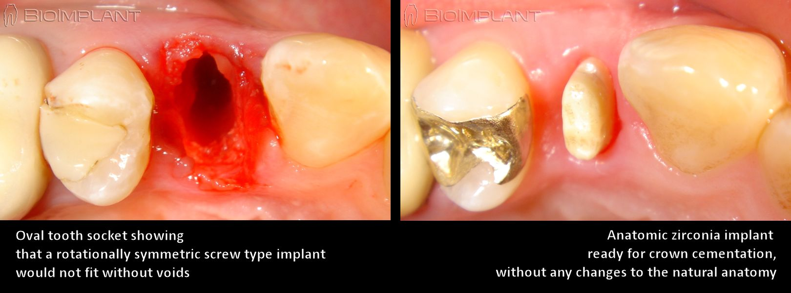 oval_tooth_socket_premolar_anatomic_implant