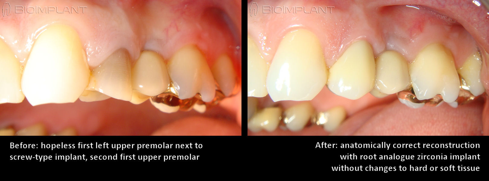premolar_reconstruction_with_ceramic_anatomic_dental_implant