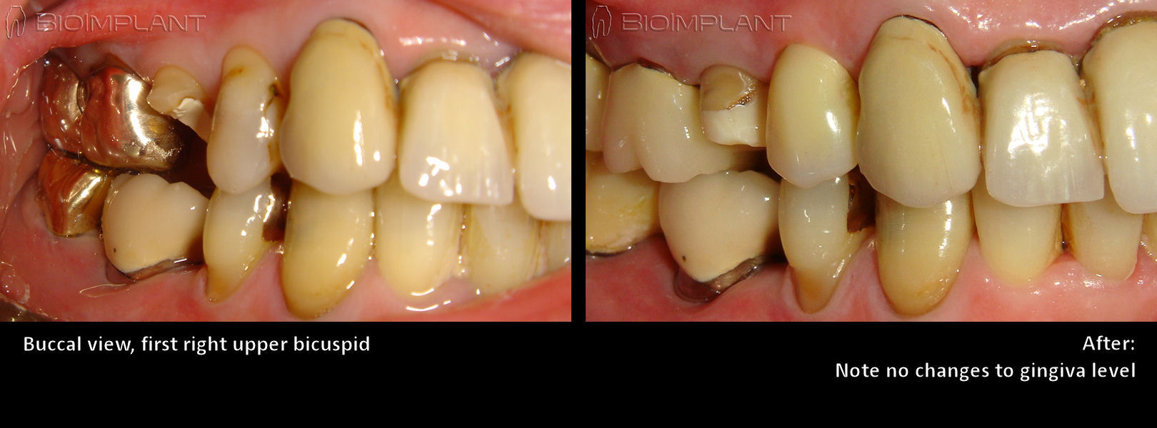 root_analog_implant_before_after