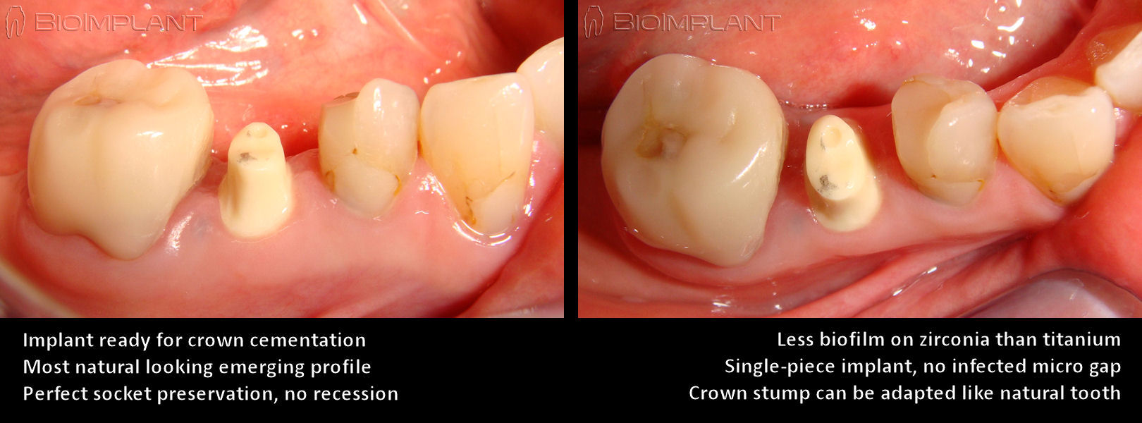 single_piece_zirconia_implant_crown_stump
