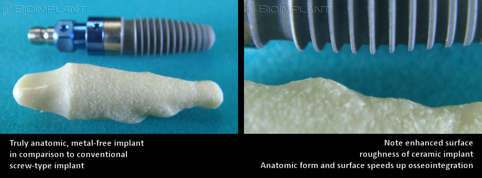 surface_roughness_of_anatomic_implant