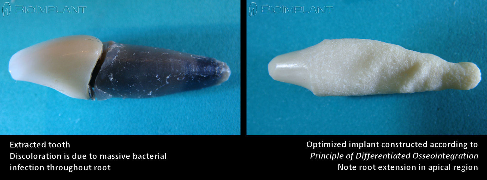 tooth_compared_to_anatomic_implant