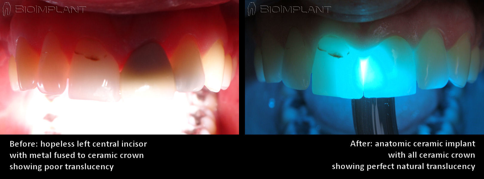 translucency_of_truly_anatomic_dental_implant