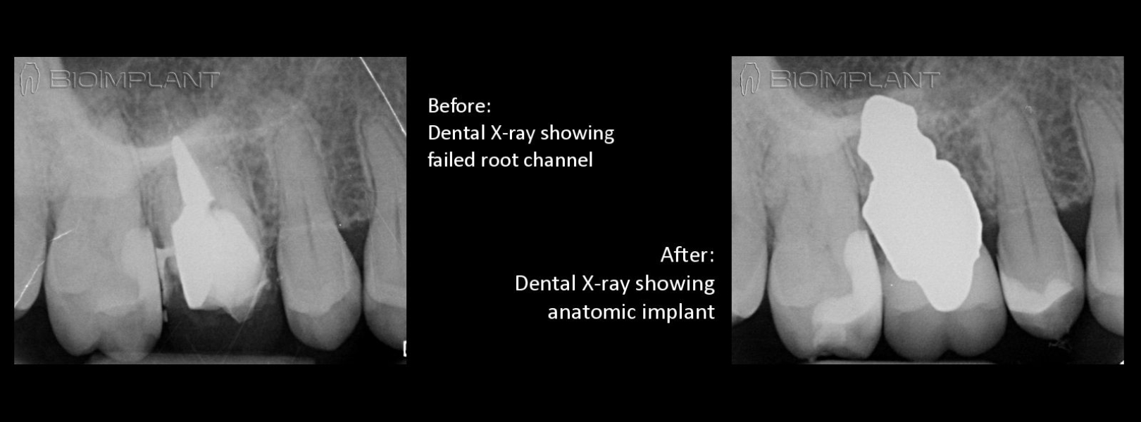xray_failed_root_canal