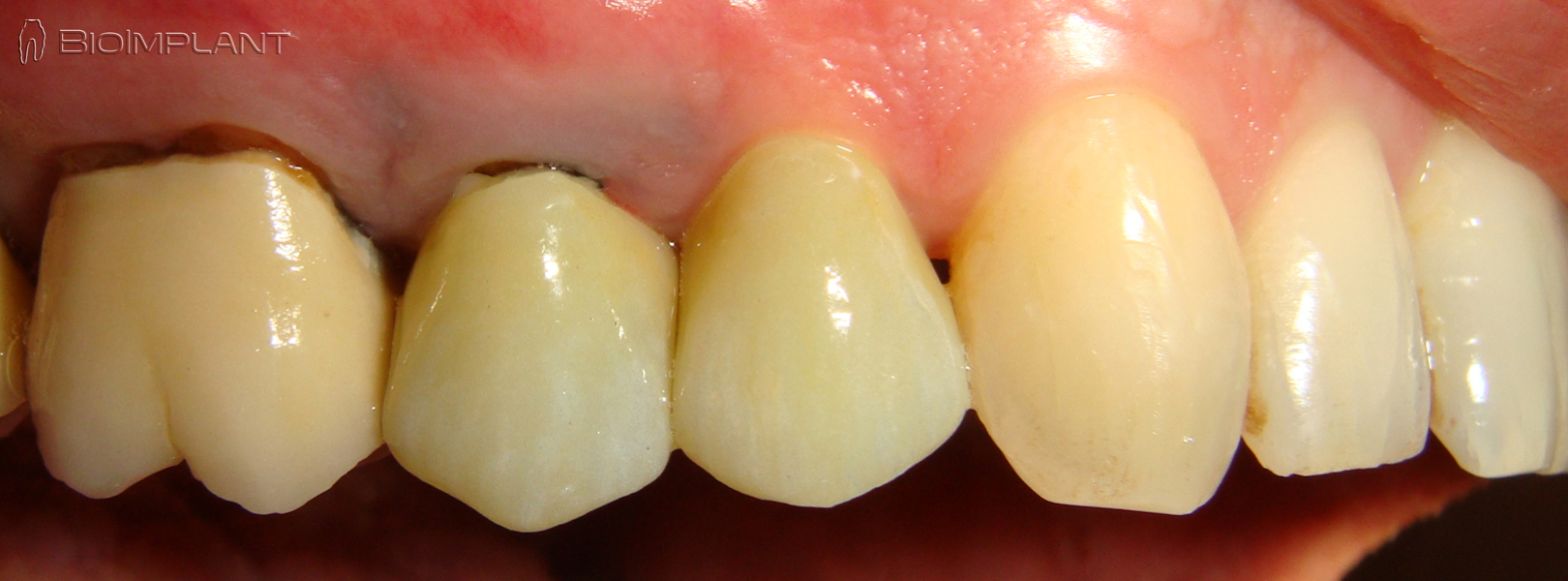1year-post-op-truly-anatomic-zirconia-dental-implant-first-premolar