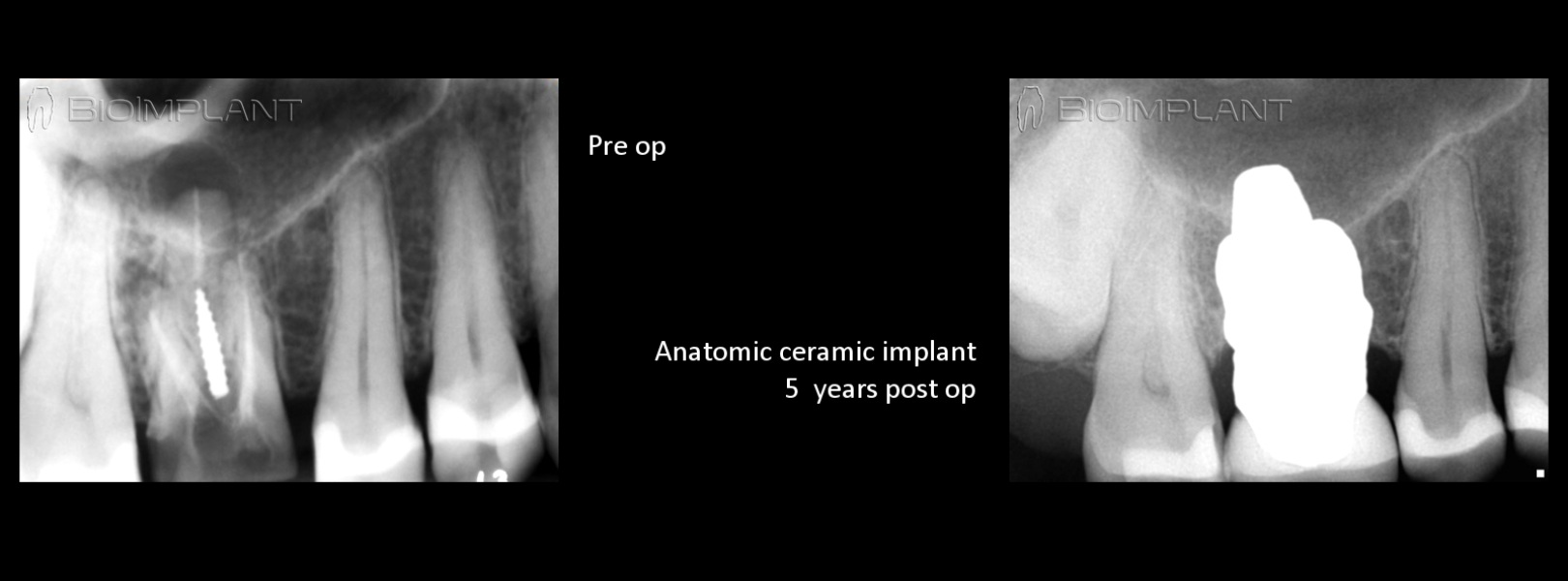 anatomic-ceramic-dental-implant-x-ray-5-years-follow-up