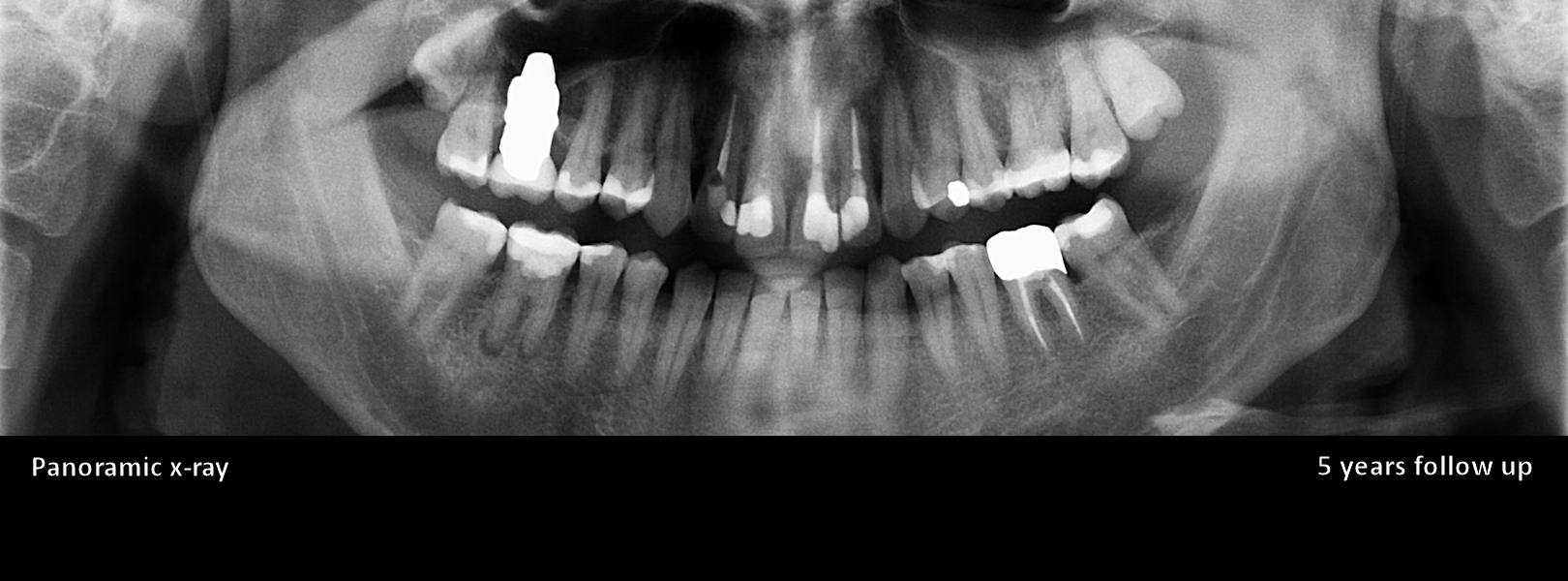 anatomic-ceramic-implant-upper-molar-panoramic-x-ray-5-years