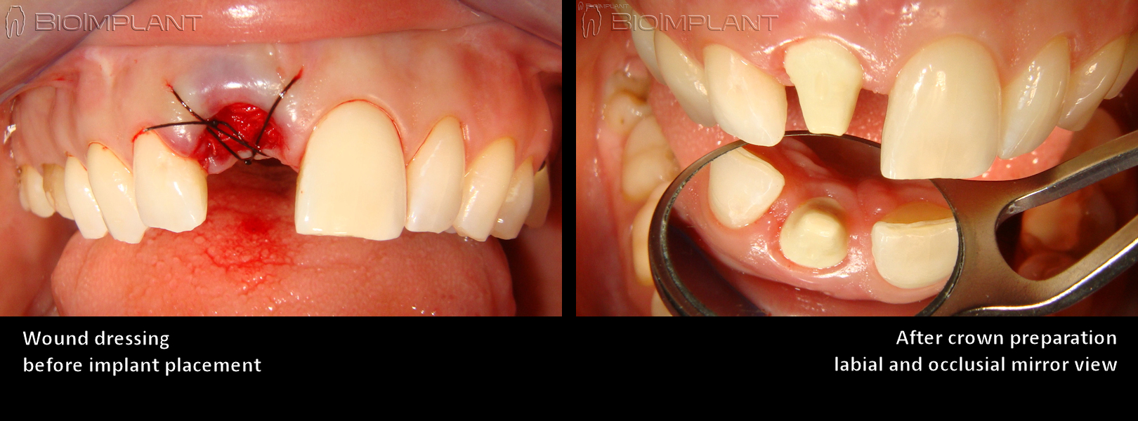 extraction site ceramic implant before crown restoration