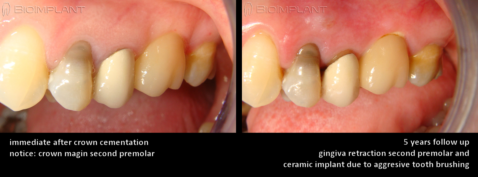 fully-metal-free-ceramic-anatomic-dental-implant-5-years-follow-up