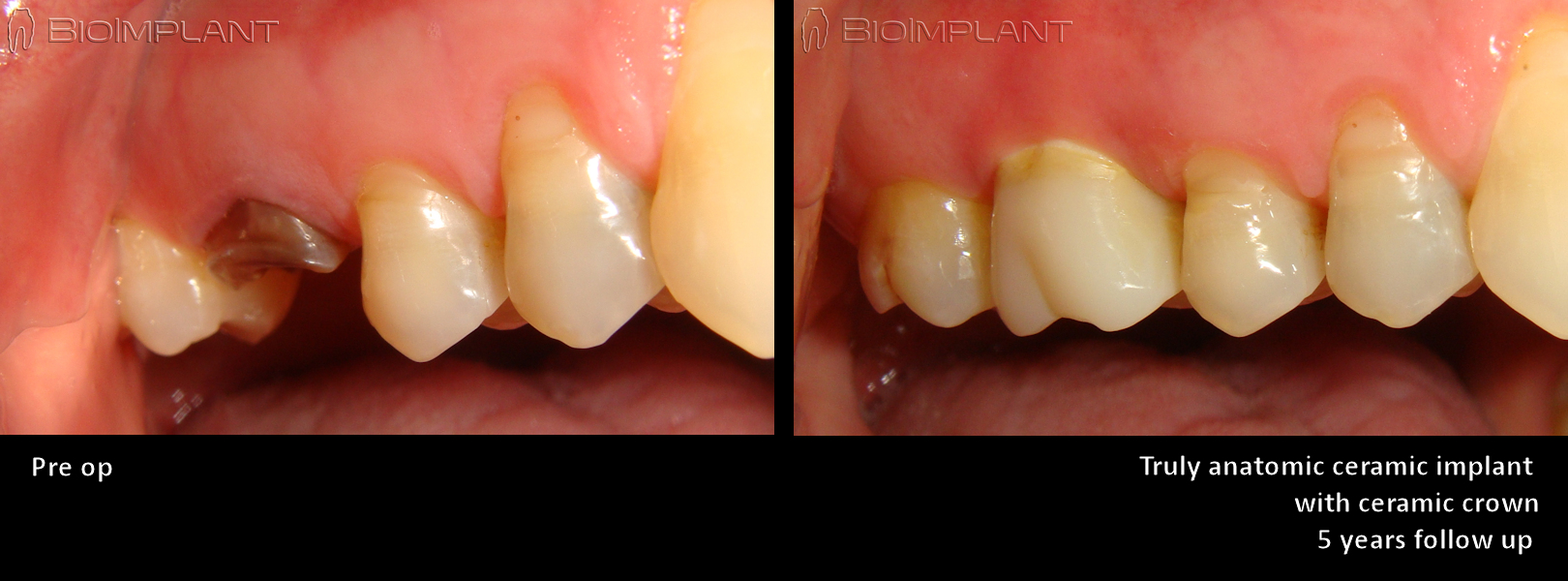 fully-metal-free-immediate-upper-molar-implant-5-years-follow-up