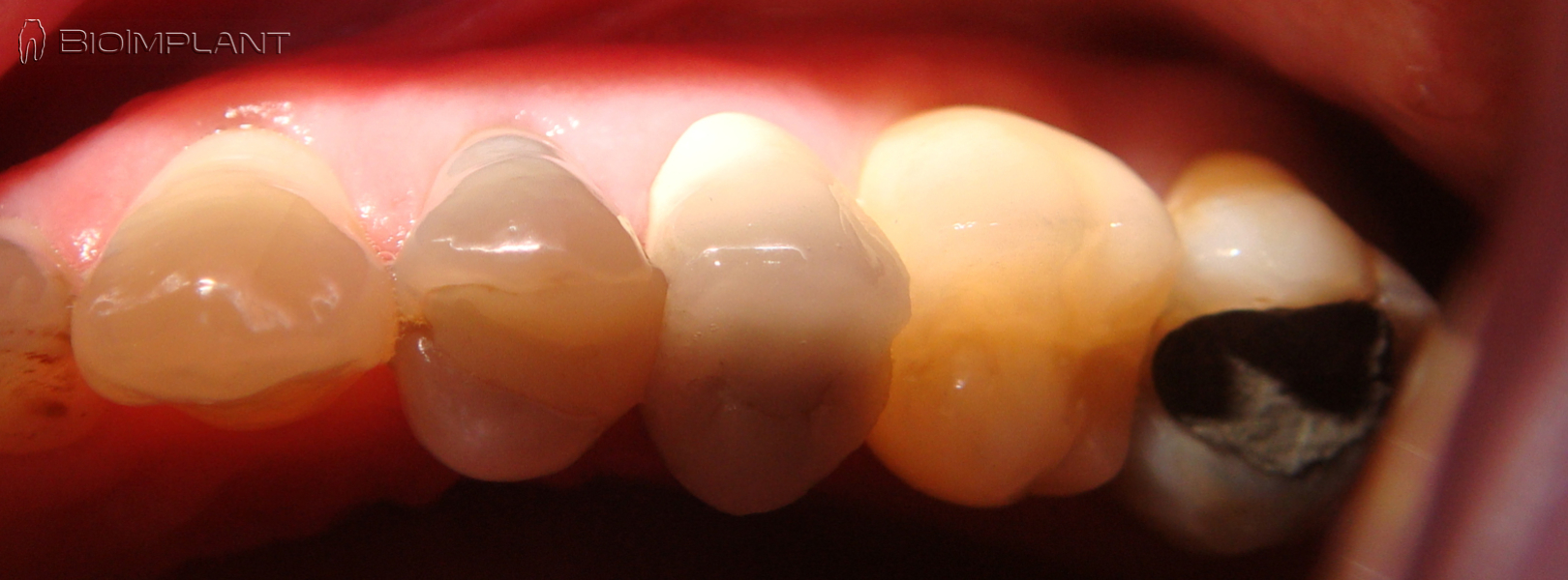 transluceny-fully-metal-free-ceramic-immediate-upper-molar-implant-anatomical
