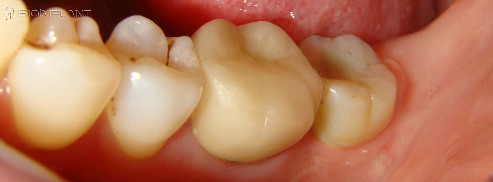immediate-ceramic-dental-implant-rai