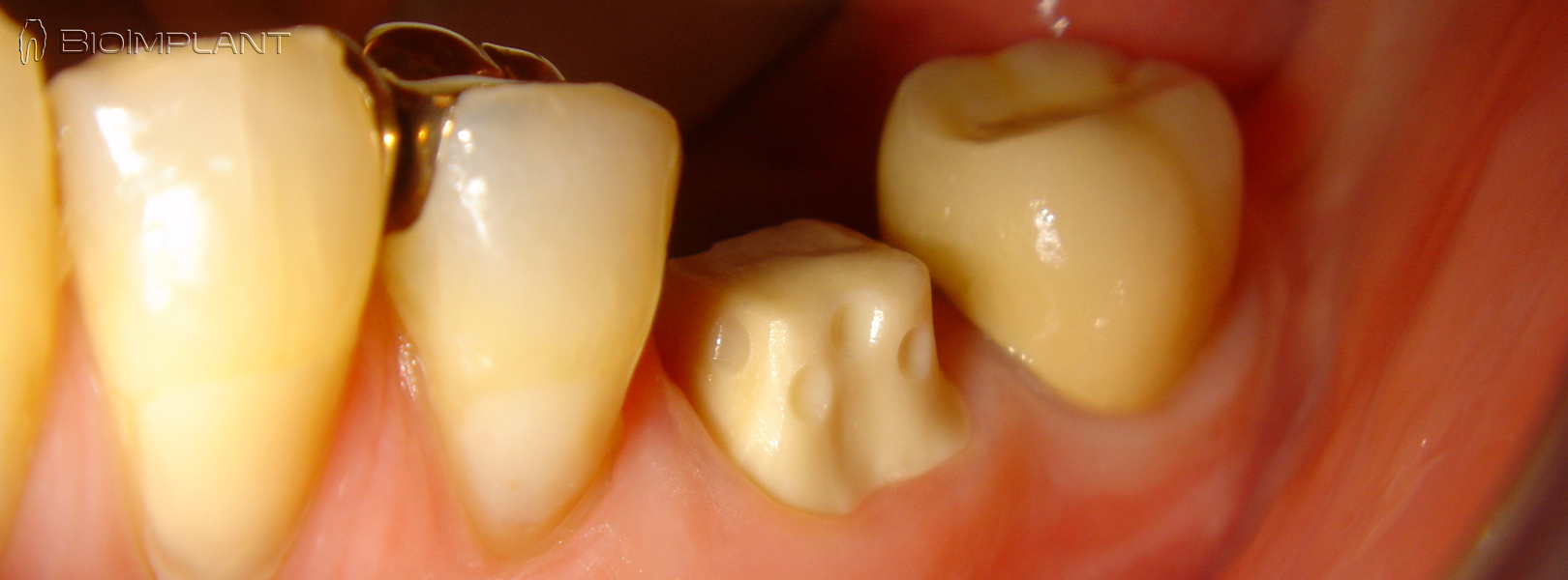 crown stump zirconia implant