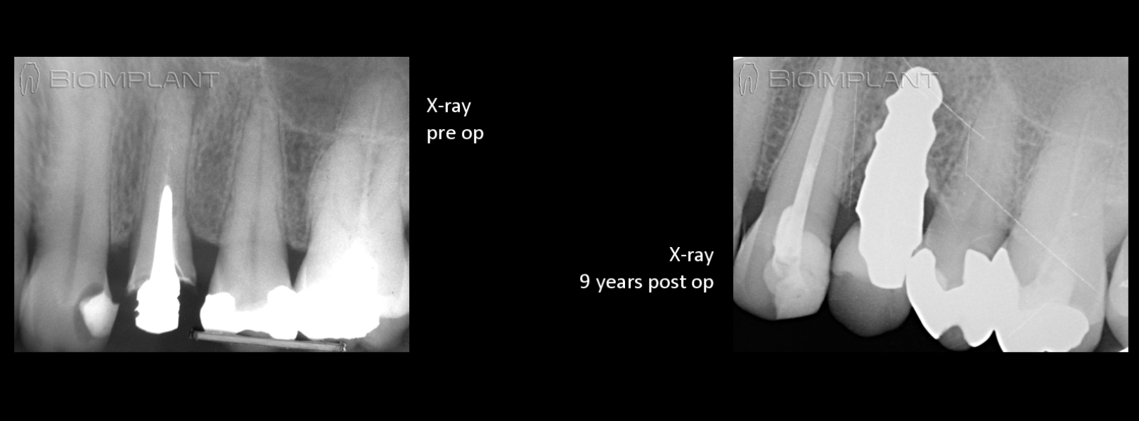 pre op and 9 years follow up ceramic implant keramik implantat