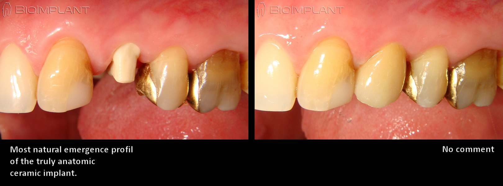 truly anatomic ceramic implant keramik implantat
