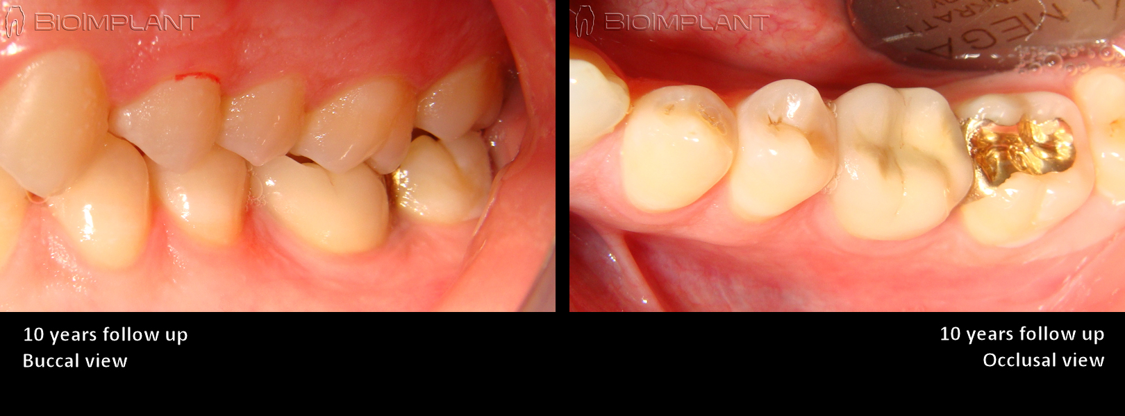 10 years follow up bioimplant keramik implantat