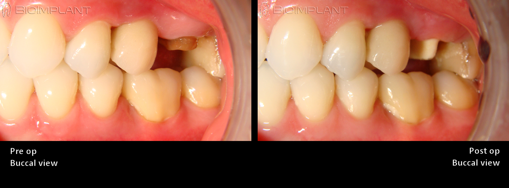 4 immediate ceramic dental implant rai
