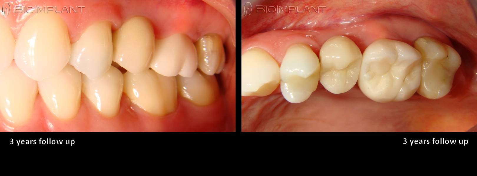 5 ceramic crown on ceramic implant keramik implantat immediate implant