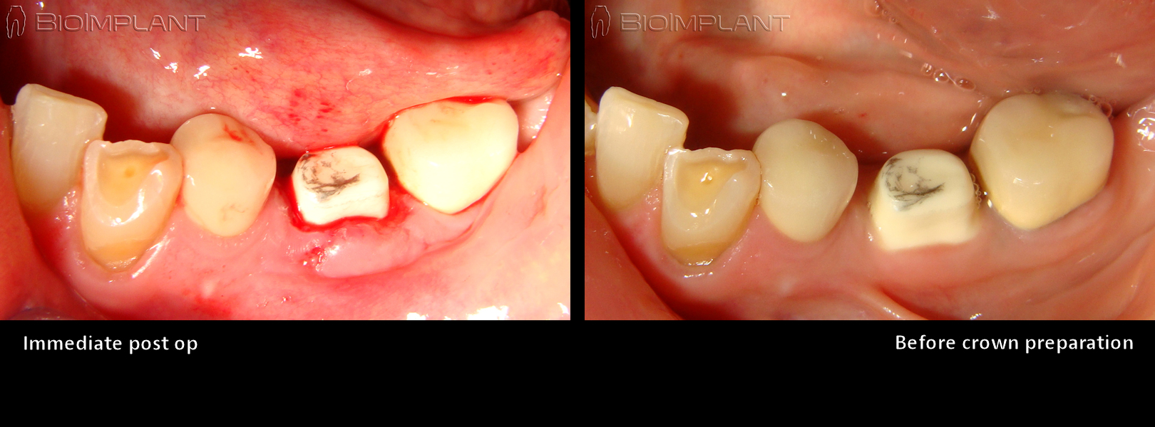 anatomic ceramic dental implant truly anatomic