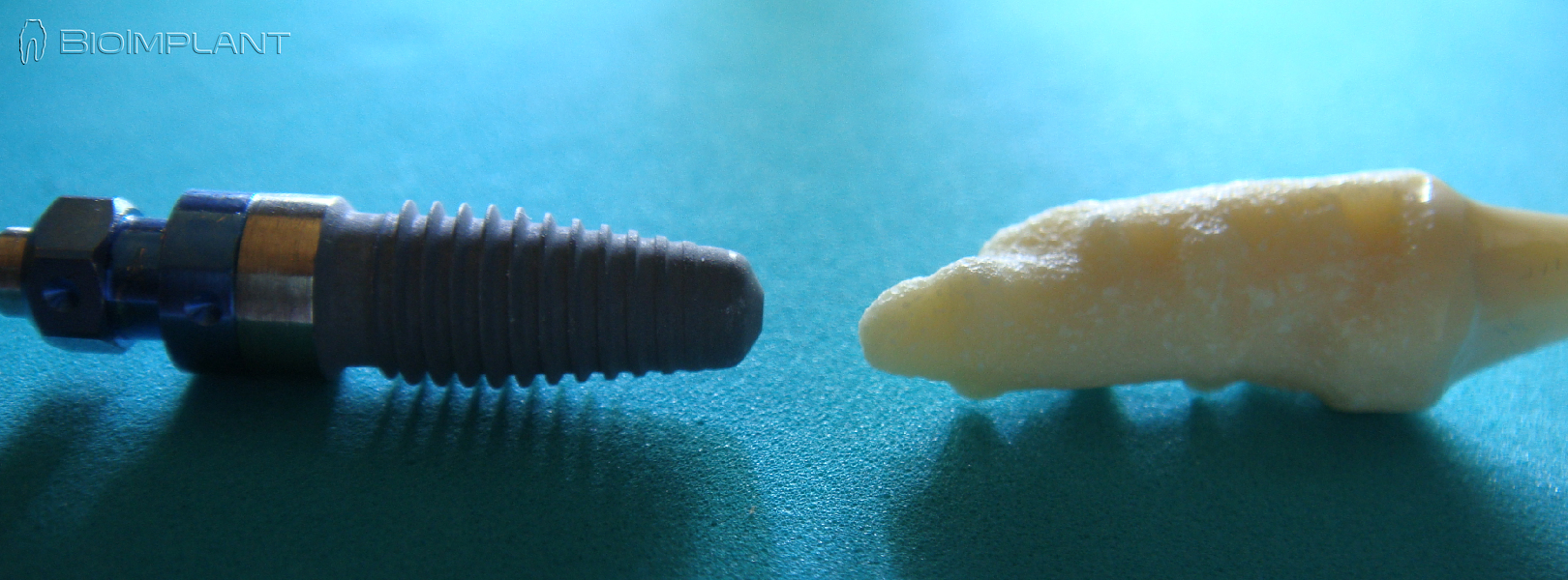 root analogue ceramic dental implant