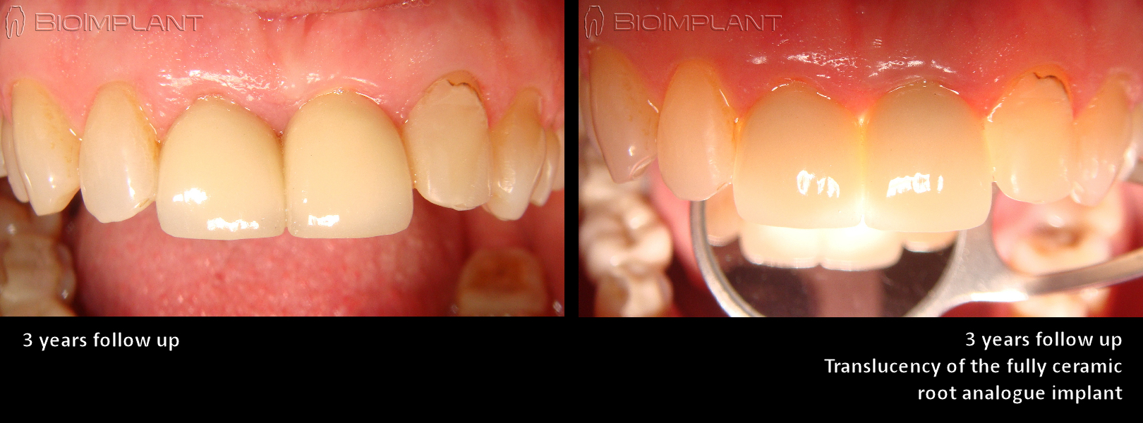 translucency of root analogue implant fully ceramic