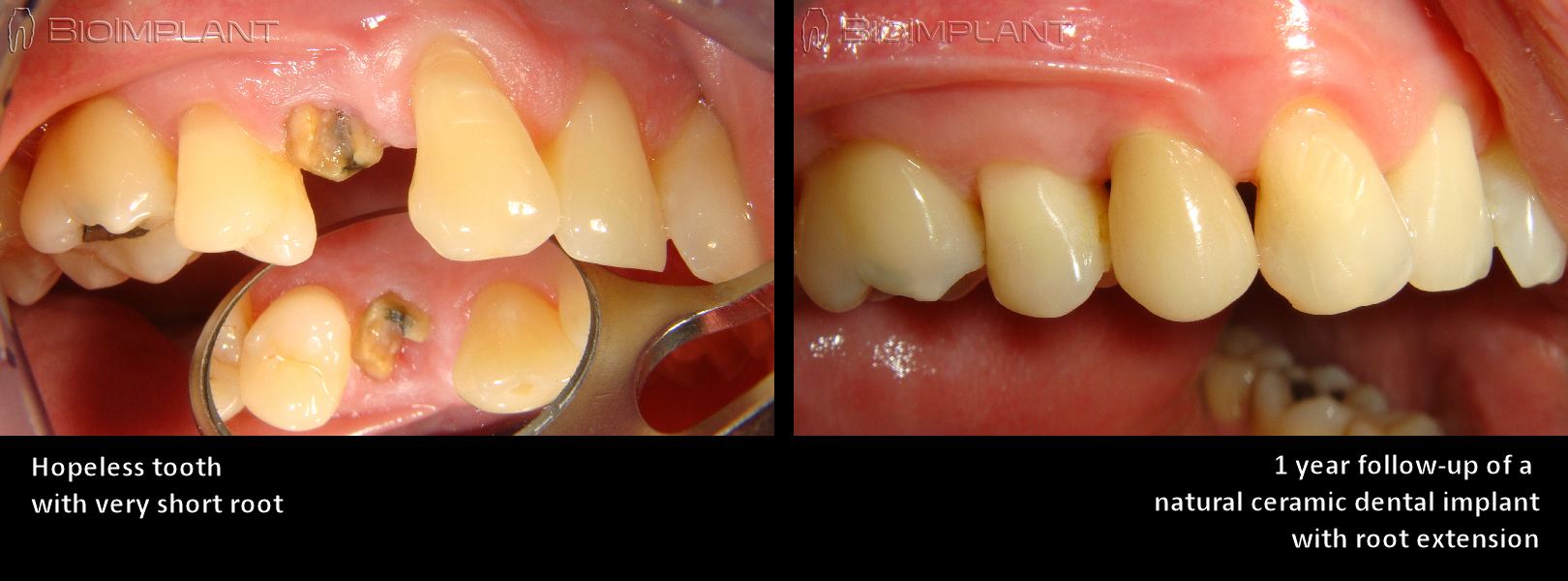 2 sofortimplantat keramisch immediate natural dental implant bioimplant