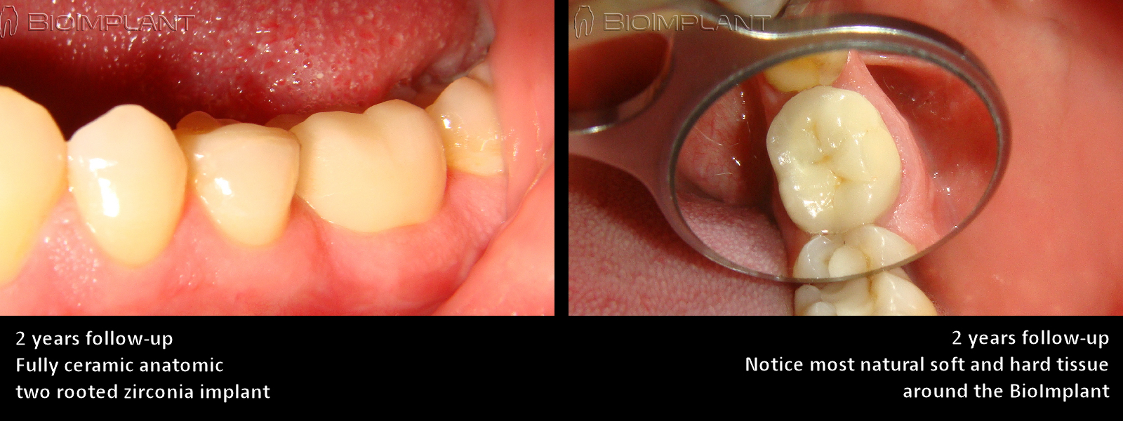 3 most natural cad cam dental implant zahnimplantat