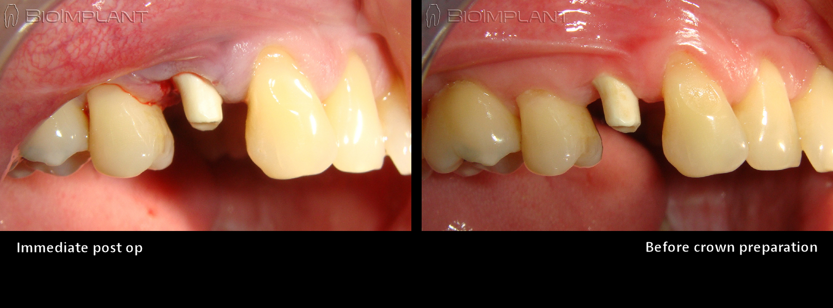 3 non-surgical implant placement immediate anatomical keramik sofortimplantat rai dental implant