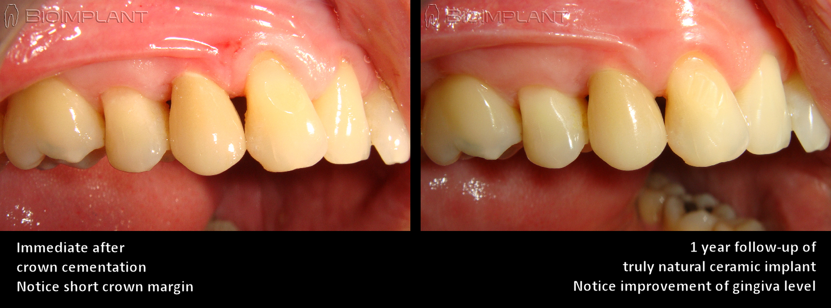 5 ceramic metal free zirconia implant dental implatn biocompatible customizes anatomical implant