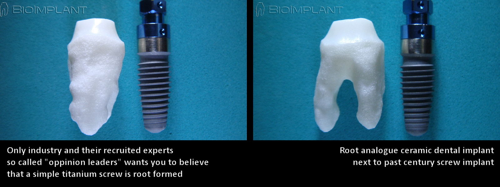 5 natural cad cam dental implant next to simple screw type implant