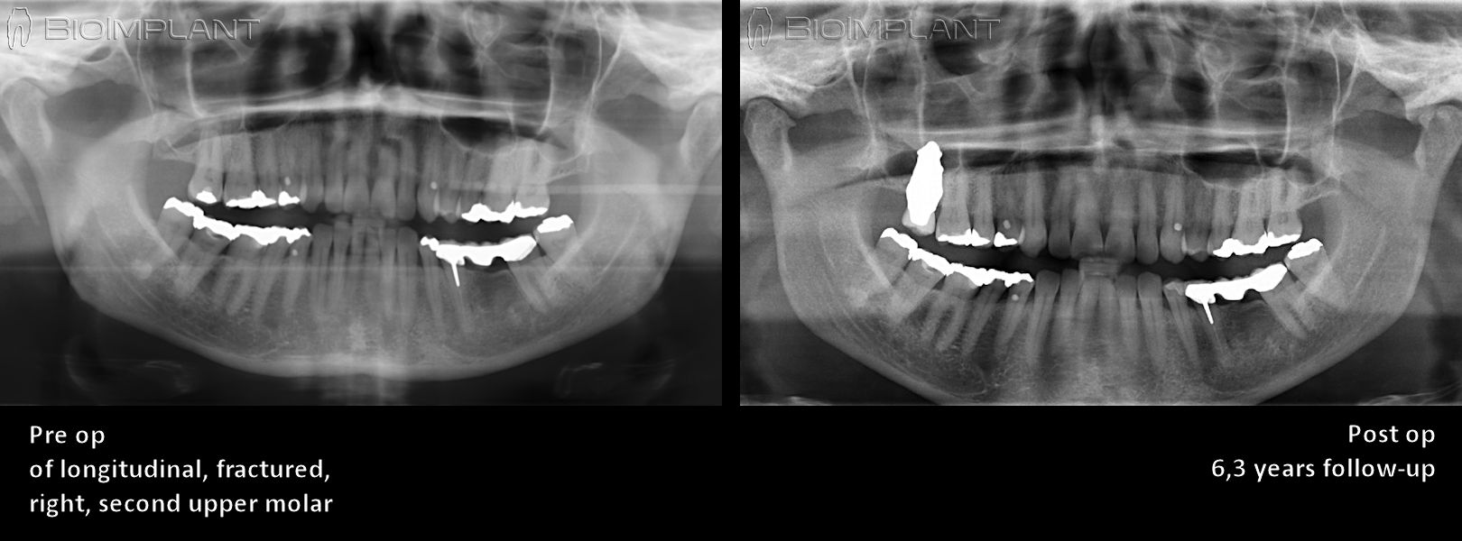 x-ray_replicate_tooth_natural_zirconia_anatomical_rai_toothloss (1)